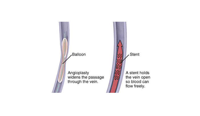 Venous Angiography and angioplasty of stenotic veins