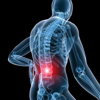 Herniated Discs Spine Surgery